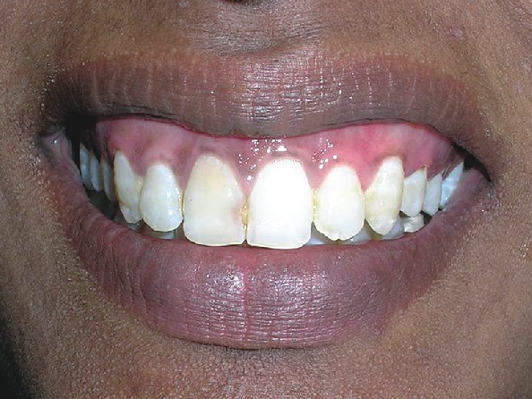 Post-op 3 months showing pink healthy gingiva
