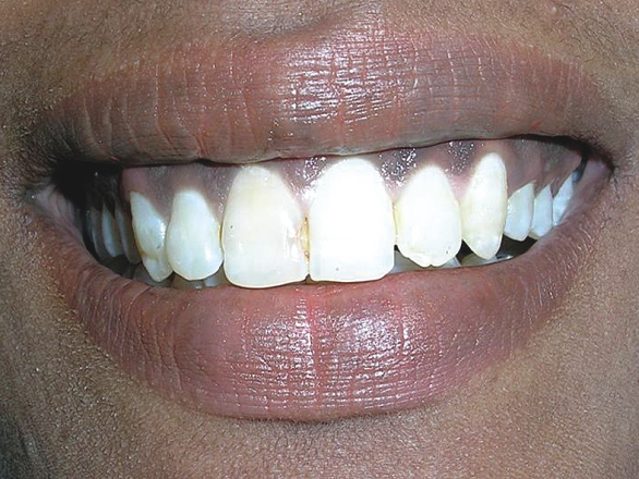 Pre-op view showing highly pigmented upper labial gingiva (high smile line)