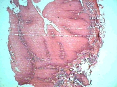 Flistopathological section showing well differentiated stratified squamous epithelium overlying the connective tissue with pushing margins and intact basement membrane. Epithelial cells exhibiting vacuolation and atypia. The underlying connective tissue showing dense inflammatory infiltrate. (10X)