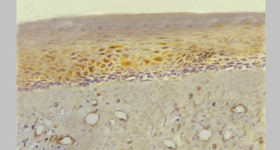 Immunohistochemical staining for MMP-1. Note the parabasal and spinous layer staining sparing the basal cell layer