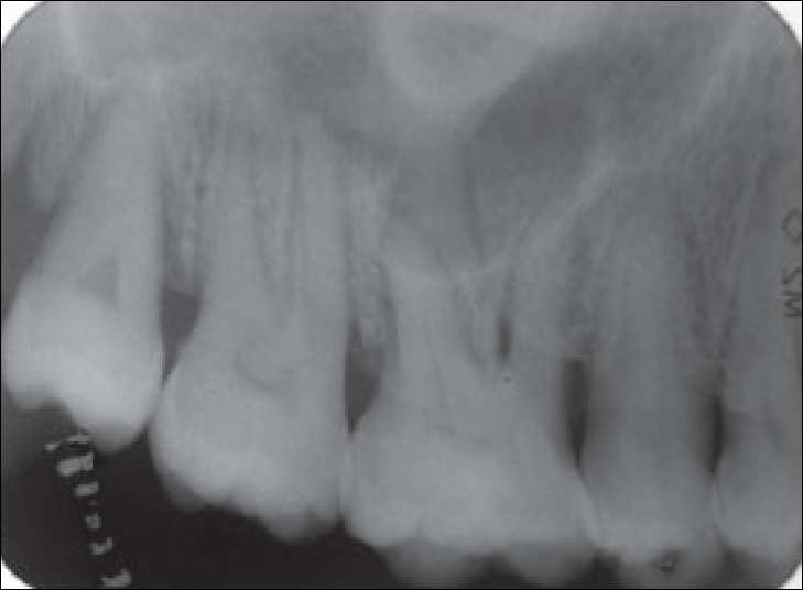 IOPA showing widened periodontal space