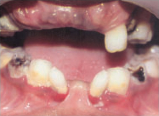 Patient showing oligodontia, smaller crowns of the teeth.(Case I)