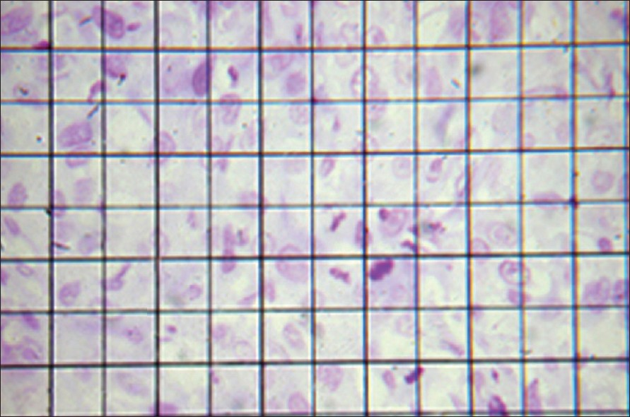 Figure 2: Photomicrograph of the oculometer grid used in counting mitotic figures