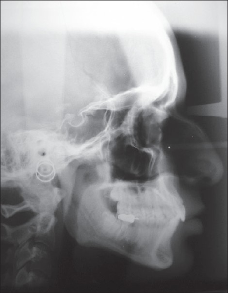 Figure 2: Pretreatment cephalogram�mandibular advancement device