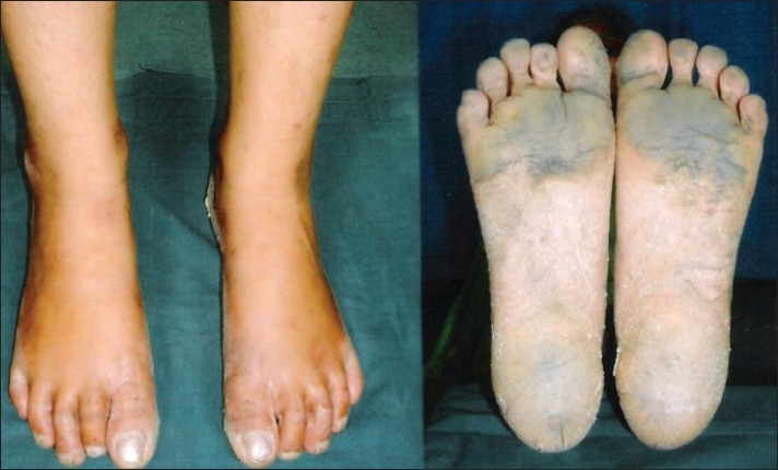 how to get thick dead skin off feet