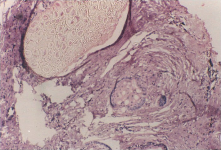 Figure 7: Vegetable matter appearing as hyalinised areas in case-2. Prominent large pale, eosinophilic, double-layered refractile hyaline membranes with follicles of ameloblastoma within the granulomatous reaction (H/E stain, �0)