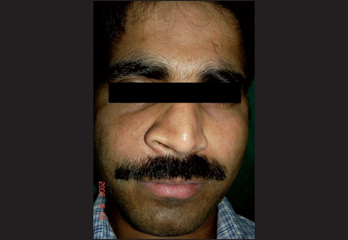 Figure 1: Extraoral view showing a diffuse swelling on the right side of the face resulting in facial asymmetry