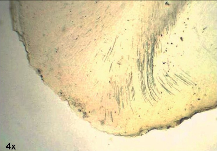 Figure 3 :Apical root resorption in CCD (ground section, 4x)
