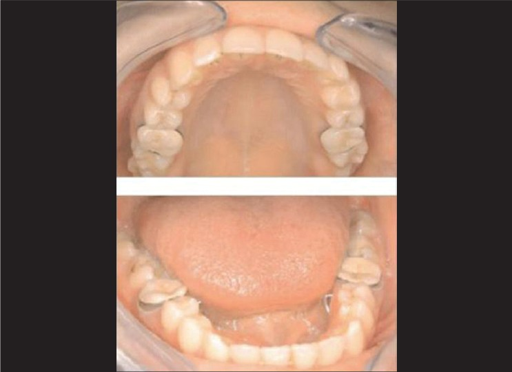 Figure 7: Intraoral view of restorations