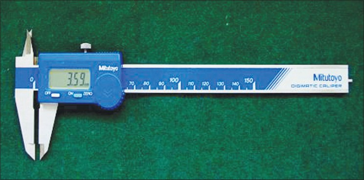 Figure 1: Measuring gauge-digital caliper