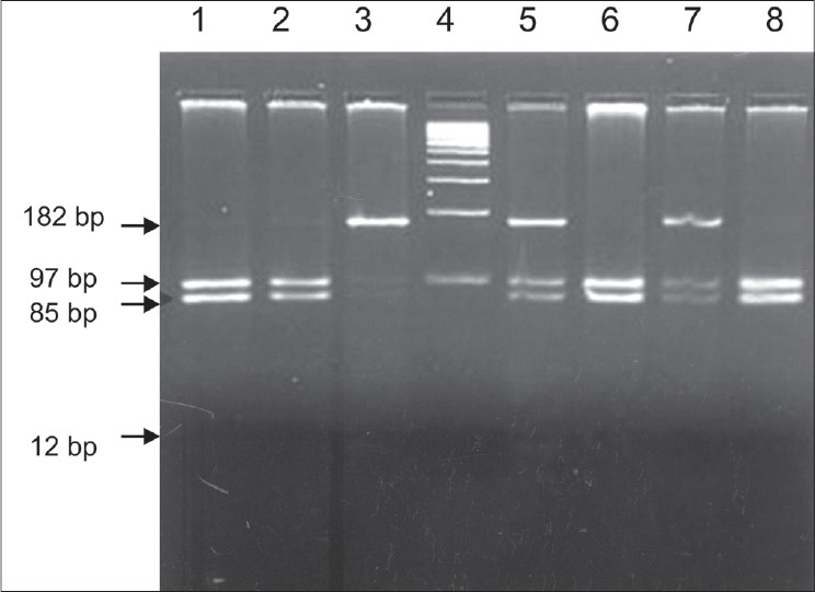 Figure 1: 3% agarose gel electrophoresis of TaqI digested PCR amplicons. Lane 1, 2, 6 and 8: genotype CC (homozygous normal type). Lane 3: genotype TT (homozygous mutant). Lane 5, 7: genotype CT (heterozygous mutant). Lane 4: 100bp DNA ladder