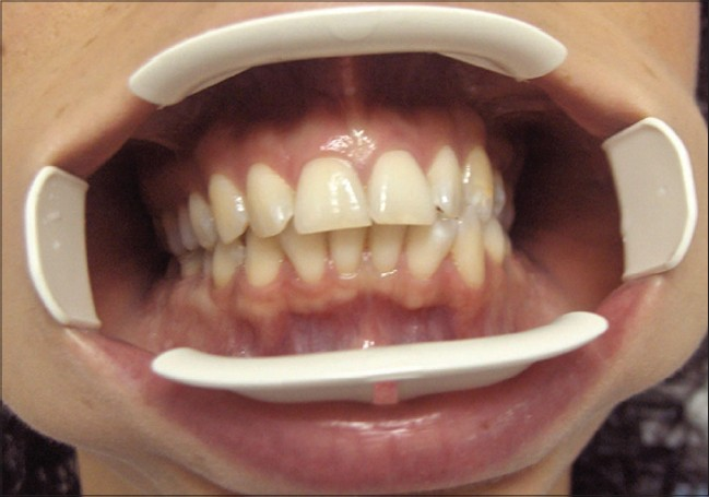 Figure 5: A 27-year-old female who was thinking her teeth were