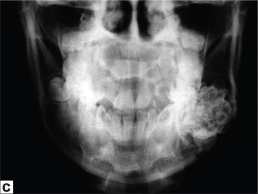 Figure 2: Radiographic examination. First case: (a) occlusal radiograph and (b) periapical radiograph. Second case: (c) posteroanterior and (d) lateral radiograph of the mandible