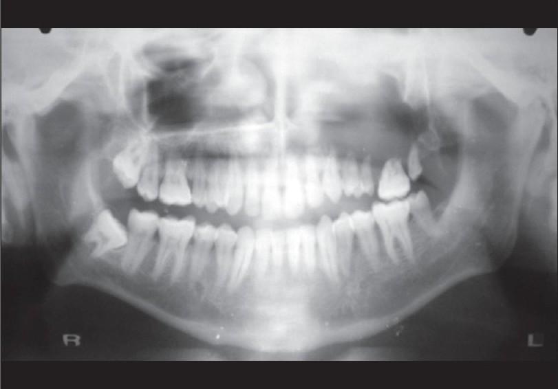Figure 2: OPG showing ill-defined radiolucency and root resorption