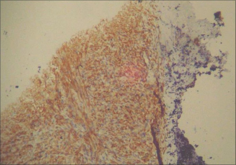 Figure 8: Photomicrograph of incisional biopsy showing positivity for S100 (Immunohistochemistry, S-100, 10×)