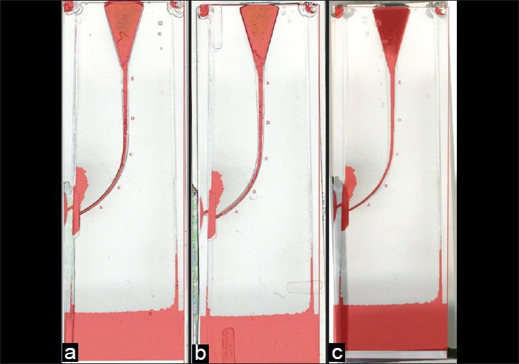 Figure 1 :Superimposition of resin block before and after preparation with the profile system (a), RaCe system (b), Mtwo system (c)