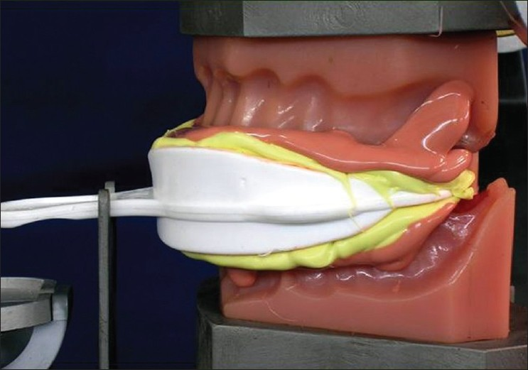Figure 3 :Impression with plastic dual arch tray
