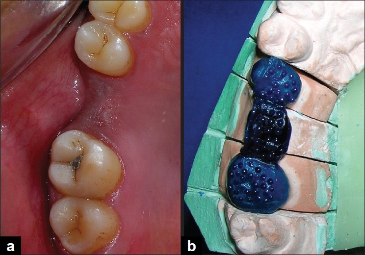 Figure 1: Pre treatment appearance (a). Fabrication of wax pattern with retentive beads for base casting (b)