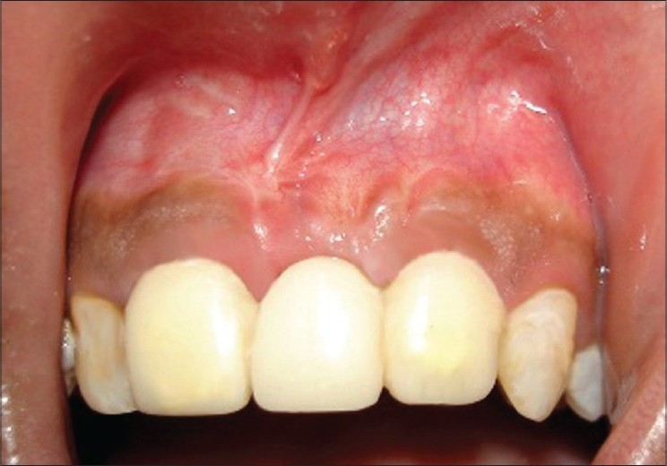 Figure 6: Fixed partial denture with natural looking esthetic pontics