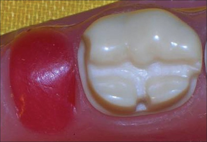 Figure 2 : Tooth preparation for resin bonded cantilever fi xed partial denture