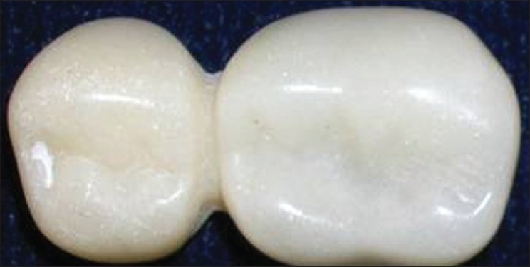 Figure 3 : Retainer and pontic for conventional cantilever fi xed partial denture