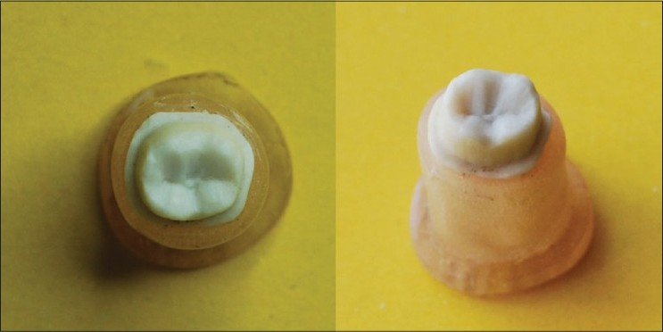Figure 1 : Ivorine models with preparation for full ceramic crown