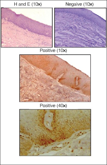 Figure 2 :Staining pattern of early-stage oral submucous fibrosis