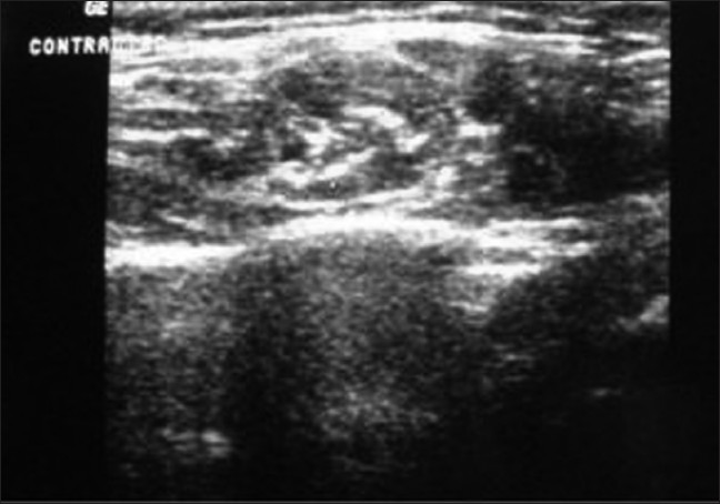 Figure 2 :Ultrasonographic image of contracted muscle