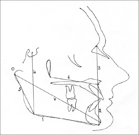 Figure 4 :Linear measurements on lateral cephalometric radiograph