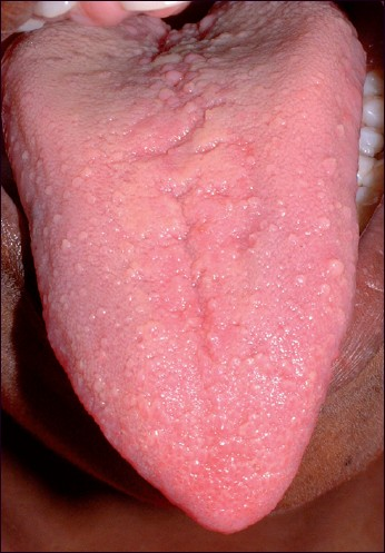 Cowden Syndrome Tongue