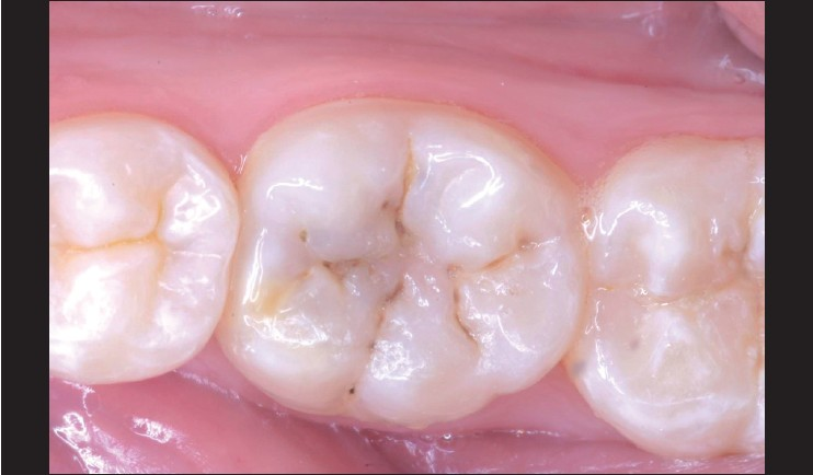 Restoration Of Posterior Teeth Using Occlusal Matrix Technique