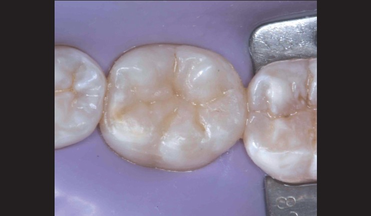 Restoration of posterior teeth using occlusal matrix technique ...