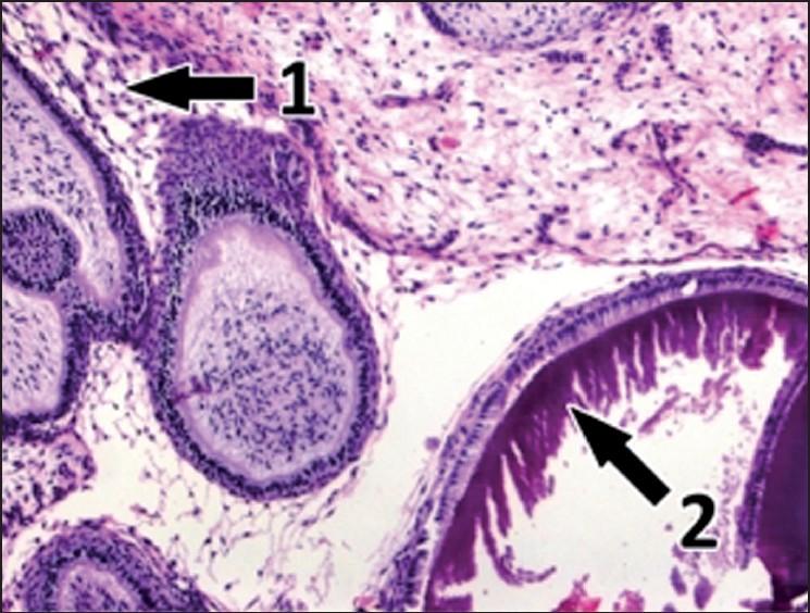 Ameloblastic Fibro Odontoma   www.pixshark.com - Images ...