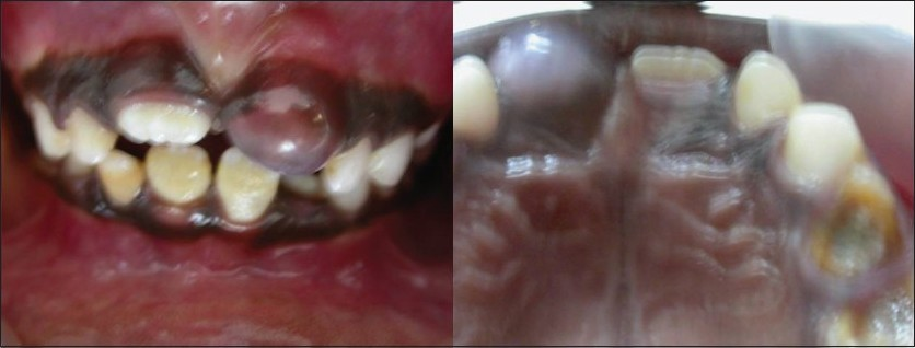 Figure 1: Large eruption cyst involving 21 labial view (left) and lingual view (right)
