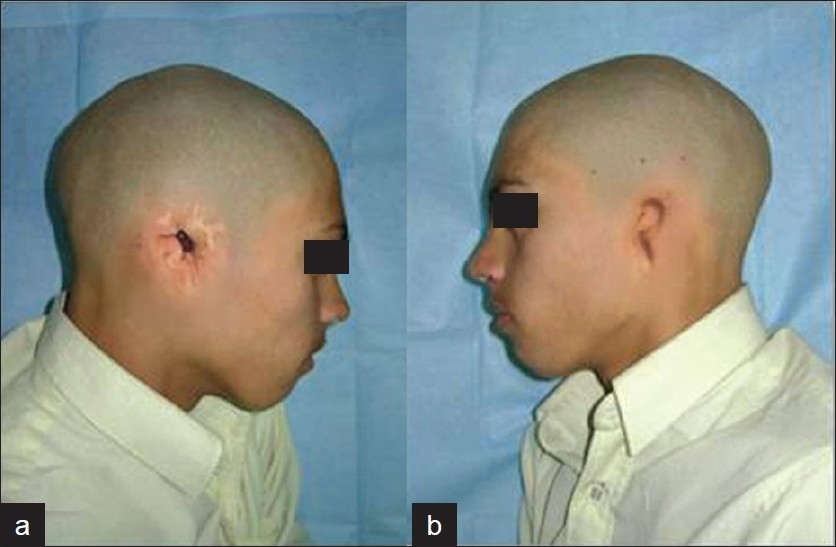 Figure 1: (a) Preoperative right lateral view; (b) preoperative left lateral view