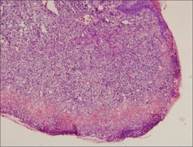 Figure 3: Initial section of pyogenic granuloma