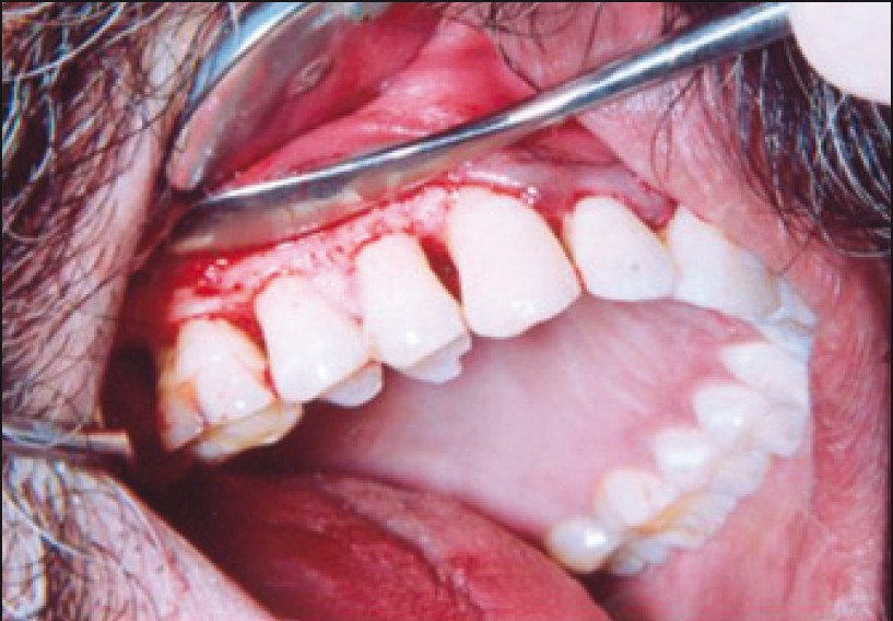 Figure 1: Infrabony defect of a patient being treated with the placement of HA bone graft material (group A)