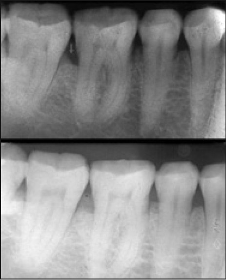 Figure 3: (Top) Radiograph of a patient showing infrabony defect depth preoperatively (group A). (Bottom) Radiograph of the patient showing the infrabony defect depth at 24 weeks postoperatively (group A)