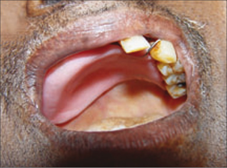 Sequence of oral manifestations in rhino-maxillary ...