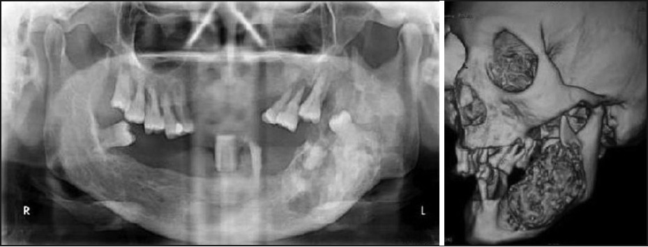Figure 2: Pre-treatment orthopantomograph and 3D CT showing a large, mixed radiolucent-radiopaque lesion over left body and ramus of mandible