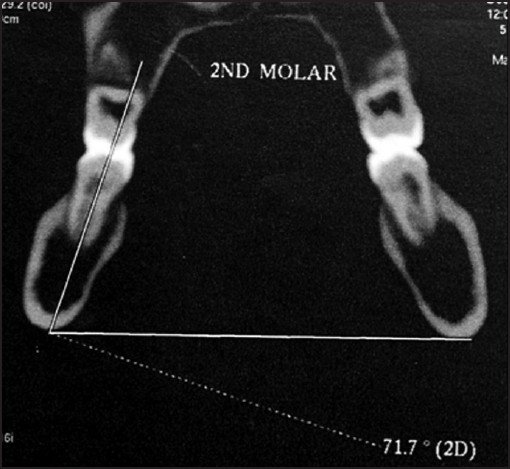 Figure 6: Actual tomogram showing the coronal section of mandible. Measurement being performed on mandibular right 2<sup>nd</sup> molar