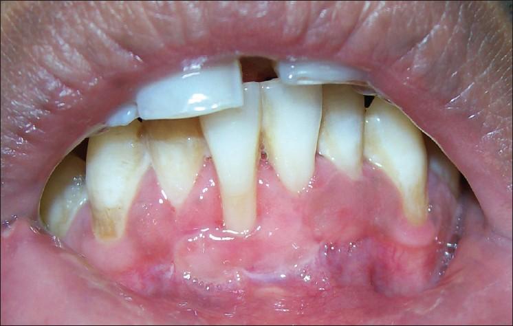 vita fläckar på tandköttet