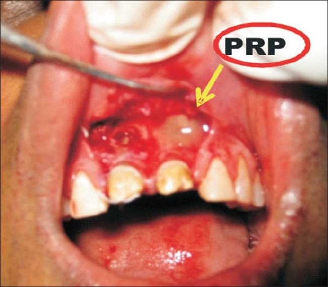 Figure 2: PRP placed in periapical region unilaterally