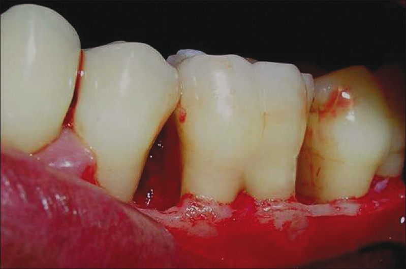 Figure 2: Infrabony defect in relation to lower I molar