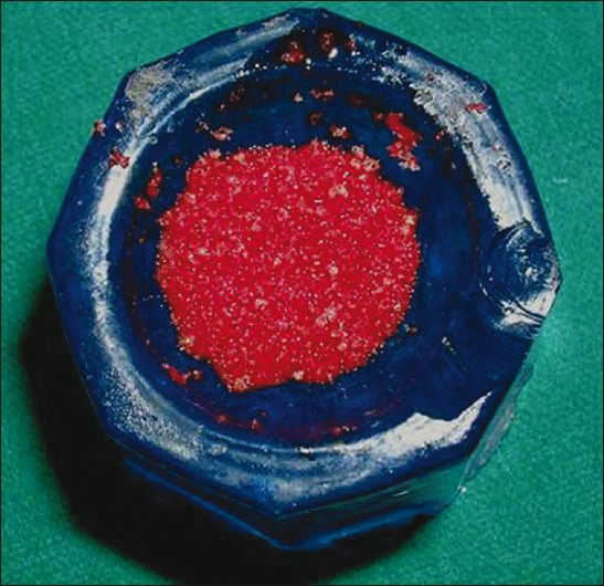 Figure 3: Bone graft mixed with activated PRP