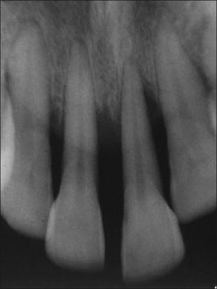 Image result for severe periodontitis x-ray