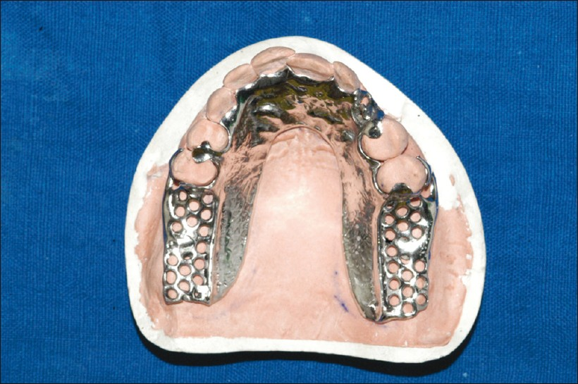 Use of training dentures in management of gagging Yadav S