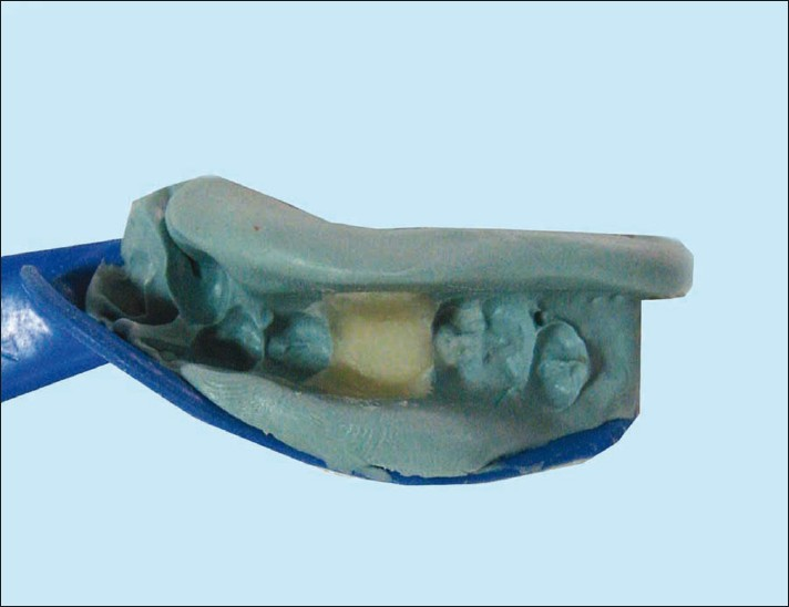 Figure 2: Tooth-colored autopolymerizing acrylic resin placed in impression of desired tooth