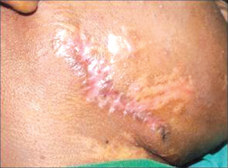 Figure 3: Wound closed in layers