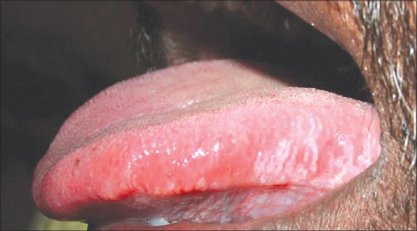 Oral hairy leukoplakia cause